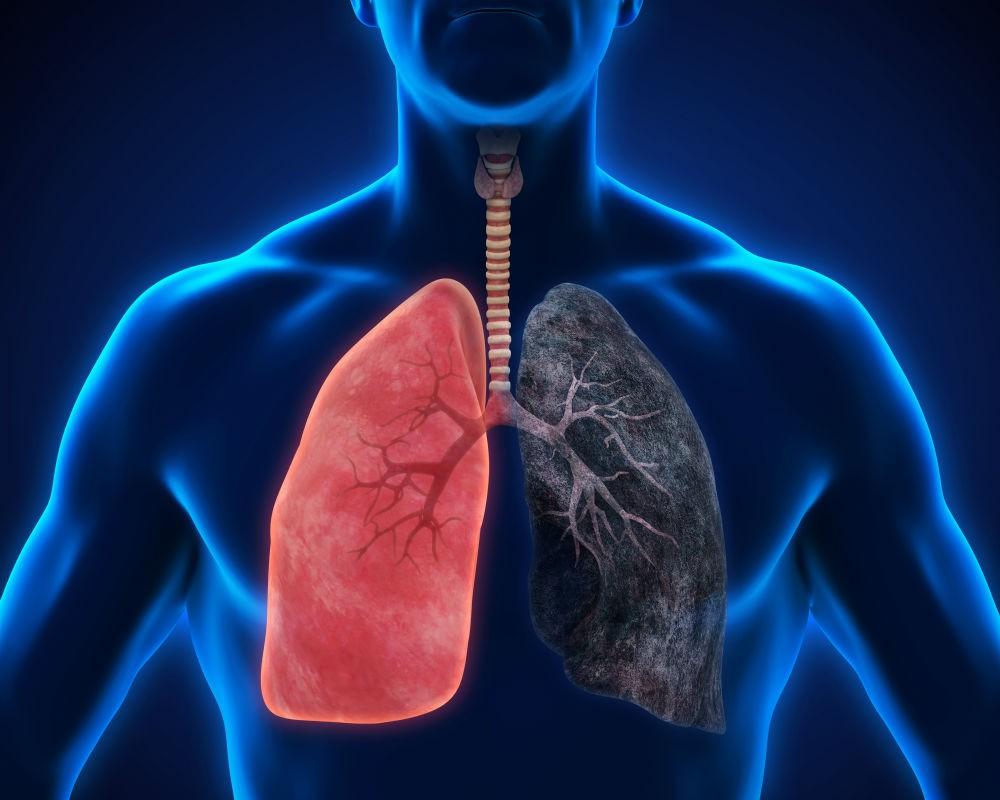 Lung Cancer - Заболевания органов дыхания